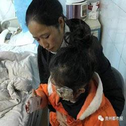 В Китае девочка получила сильные ожоги после взрыва смартфона Samsung